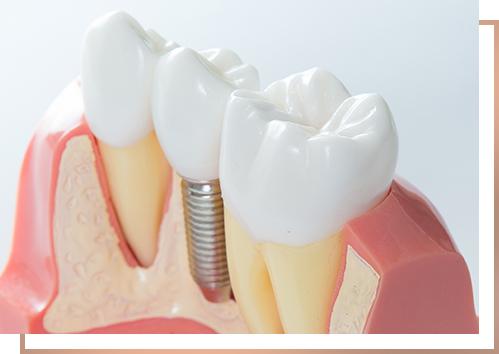 medico-implantoprotetyka